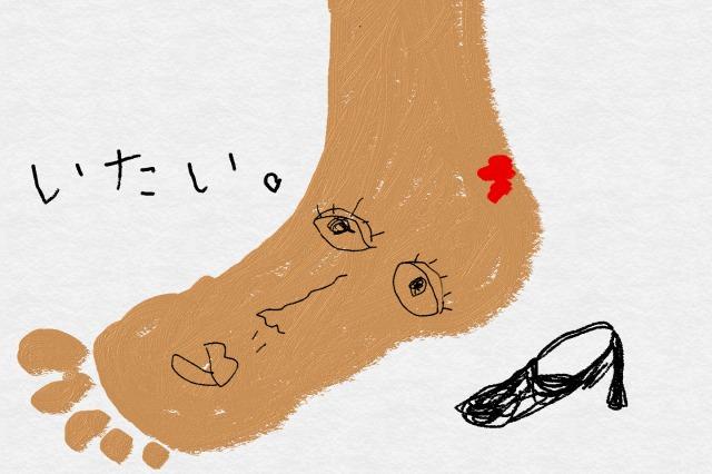 靴擦れが痛い!急な靴擦れ対処法&靴擦れしない裏技